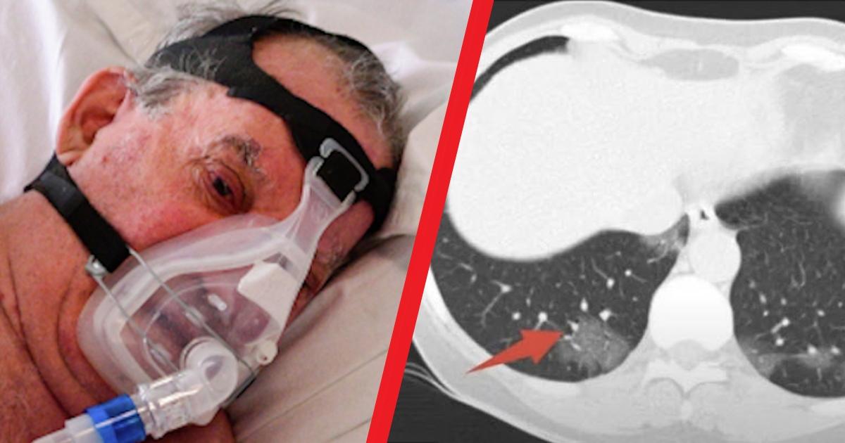 Что значит процент поражения лёгких при коронавирусе и чем он грозит
