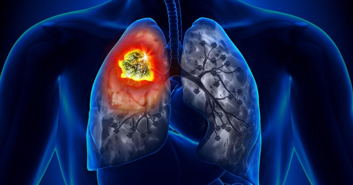 Рак легкого: симптомы, стадии, лечение. Причины рака легких