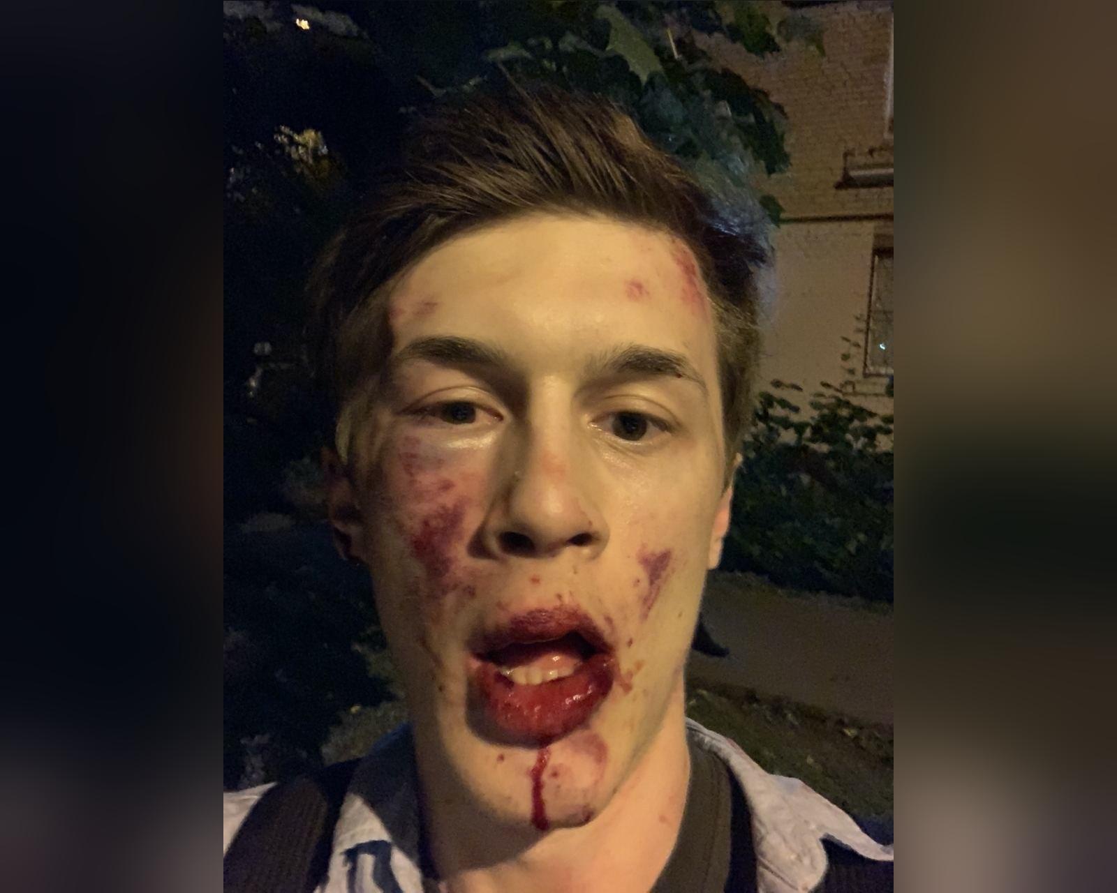 Оппозиционера Егора Жукова избили в Москве: полиция проводит проверку