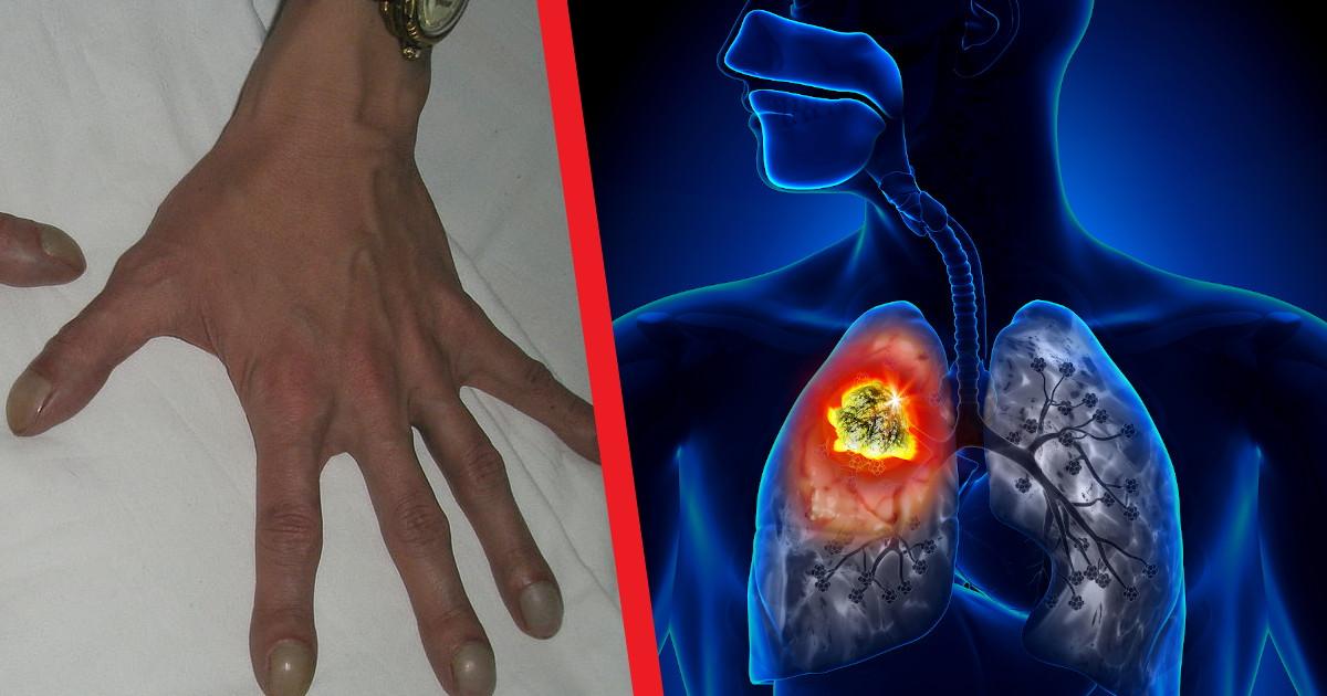 Следите за пальцами. Описан признак возможного рака легких