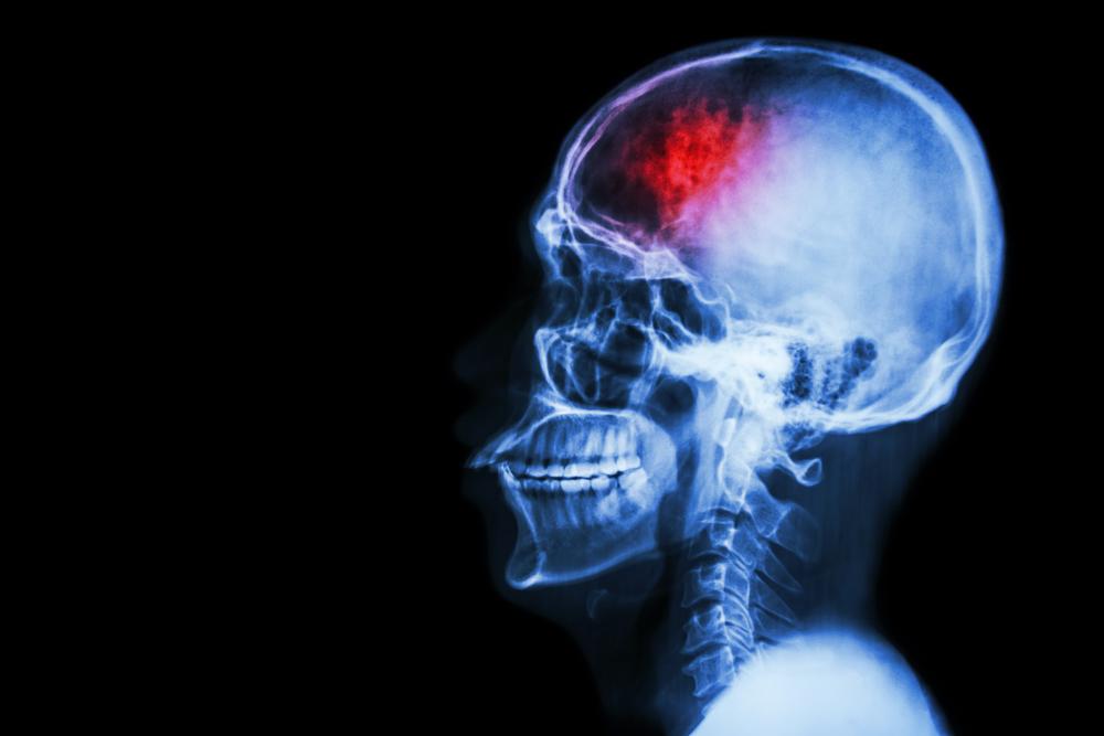 Американские ученые обнаружили биомаркеры инсульта