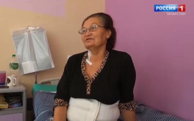 Женщина прожила 34 года с огромным червем в печени из-за знахаря