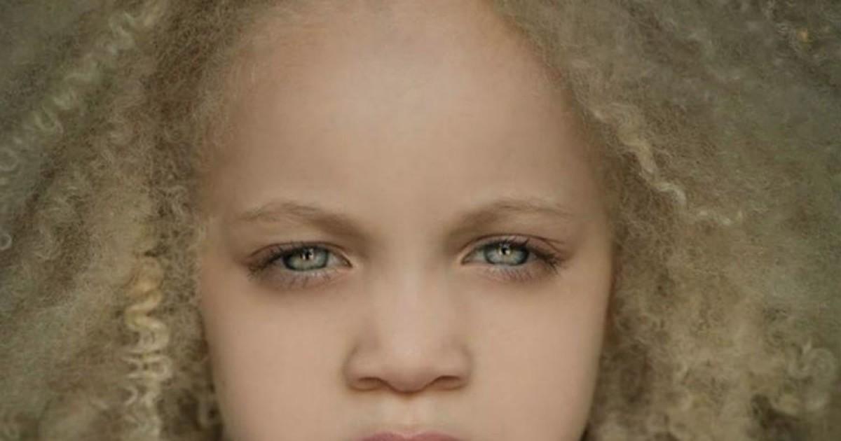 Фото Афроамериканская девочка-альбинос стала сенсацией в мире моды