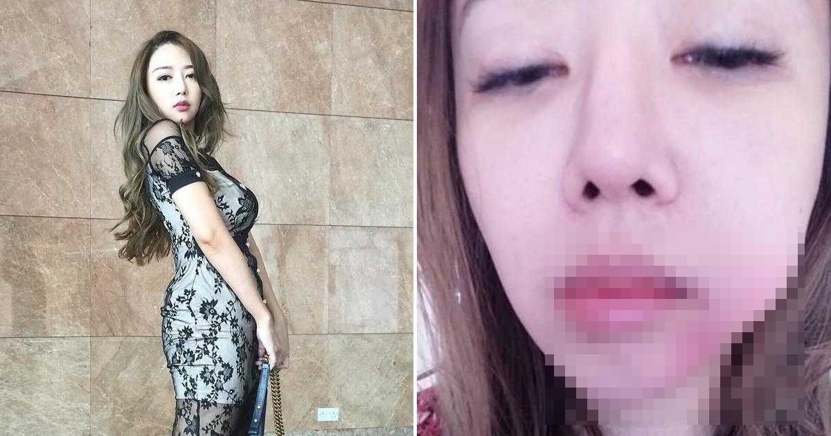 """Фото Жених избил участницу """"Мисс Азия"""" за то, что она пыталась занять для них денег"""