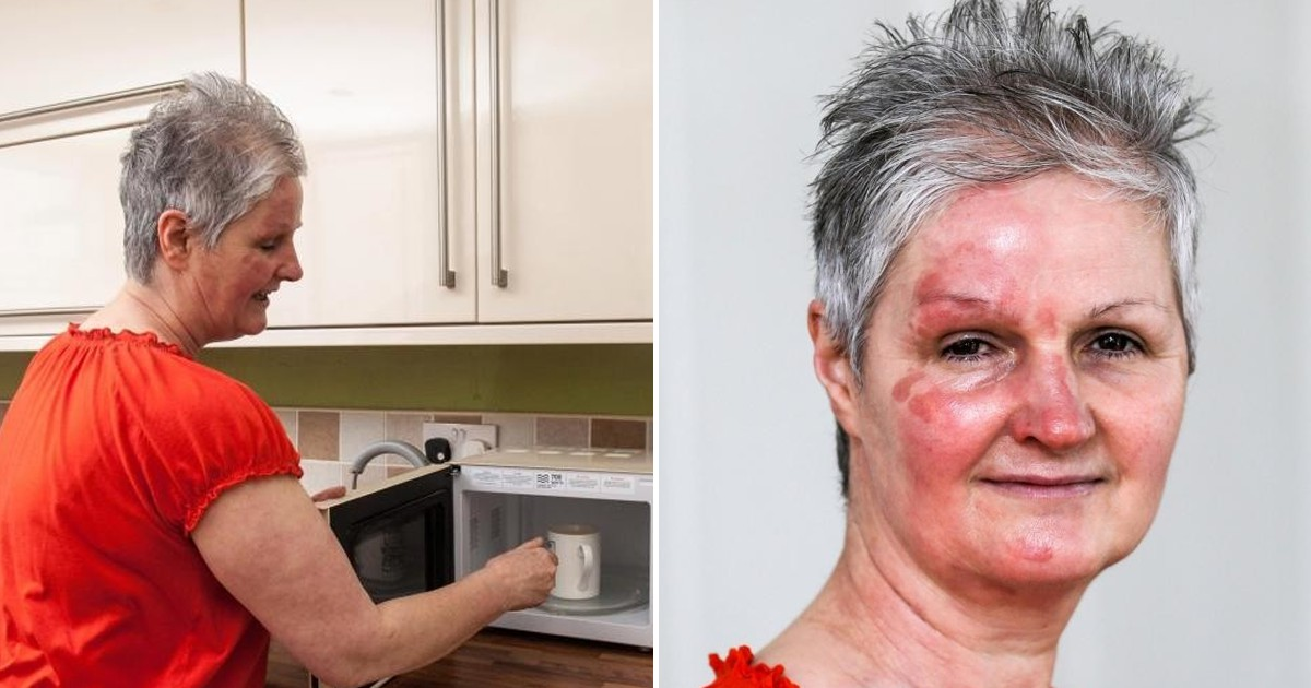 Фото Британка на своем примере доказала, что не стоит варить яйца в микроволновке