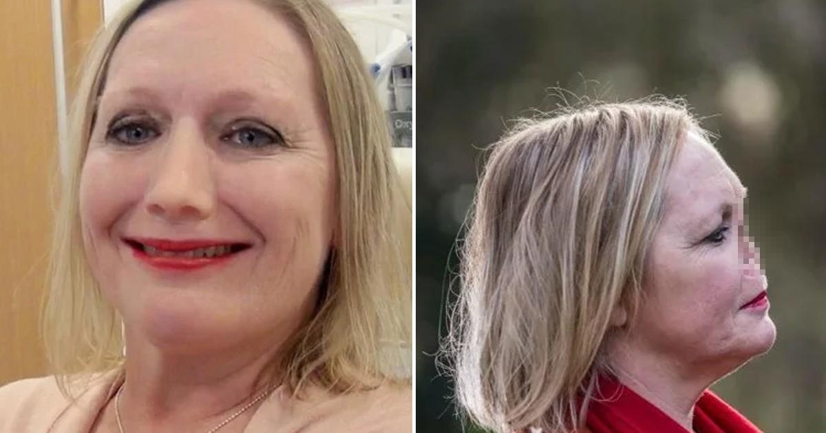 Фото Как живет 48-летняя британка, у которой нет носа