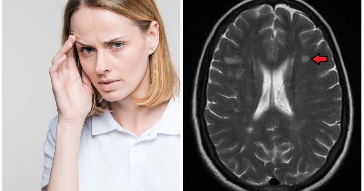 Фото Что такое рассеянный склероз? Признаки, симптомы и лечение