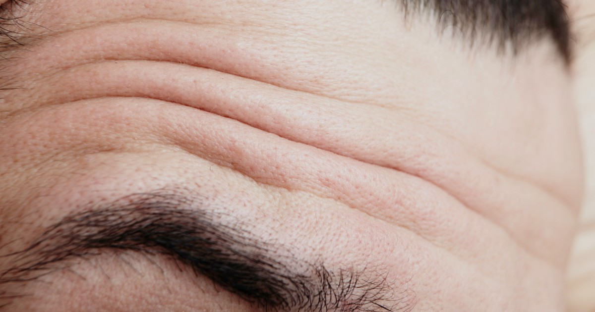 Фото Глубокие морщины на лбу могут предупредить о серьезном заболевании
