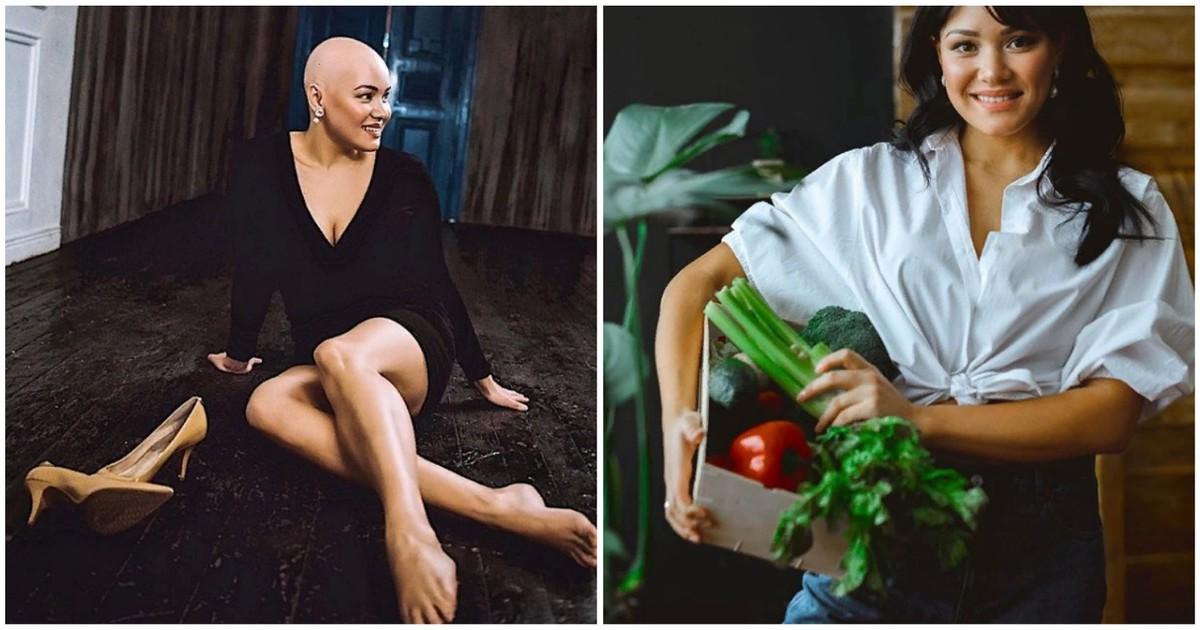 Фото Без волос. Как живет россиянка с редкой болезнью