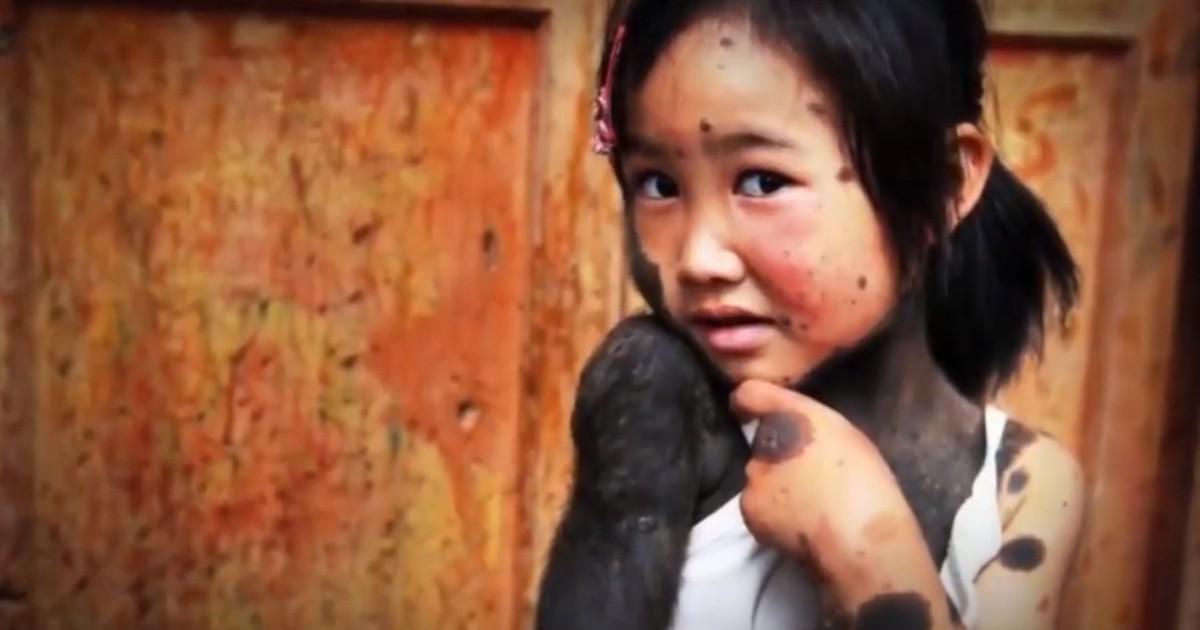 """Фото Из-за лекарств шестнадцать детей заразились """"синдромом оборотня"""""""