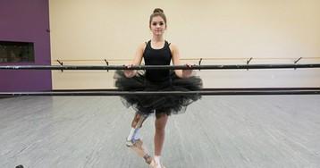 Вдохновляющий пример: девушка с протезом ноги стала прекрасной танцовщицей