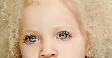 8-летняя девочка-альбинос Ава Кларк— новая звезда мира моды!