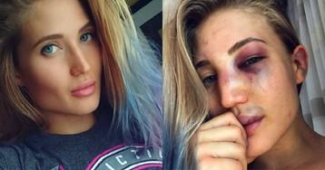 Красота — страшная сила: прекрасный российский боец MMA рассказала о жестокой реальности боев