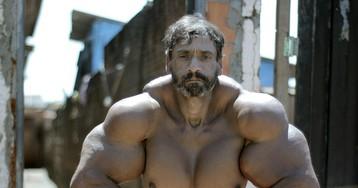 Бразильский Халк вводит в мышцы синтетическое масло, чтобы стать еще больше