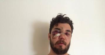 Соцсети забурлили после избиения мужчины, сорвавшего бумажку с BMW