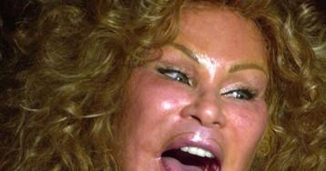 Безумная жизнь миллиардерши Джослин Вильденштейн, известной как «женщина-кошка»