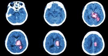 6 признаков инсульта, при которых нужно действовать немедленно