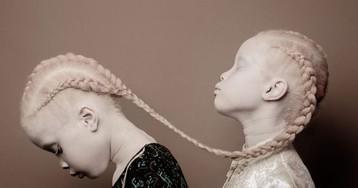 Beleza única de gêmeas albinas brasileiras está dando o que falar no exterior
