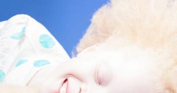 Близнецы-альбиносы изБразилии покорили мир моды своей странной внешностью