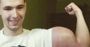 Россиянин делает инъекции опасным препаратом, чтобы увеличить объем бицепсов