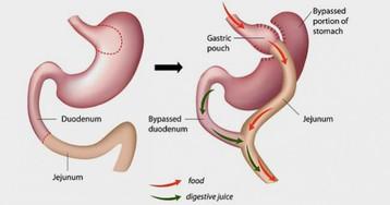 На смену «ушиванию желудка» могут прийти таблетки