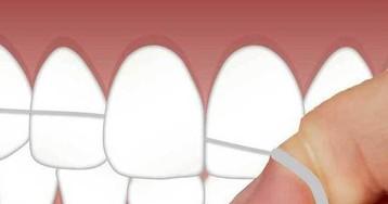 Зубная нить оставляет в организме токсичные вещества, заявили калифорнийские биологи