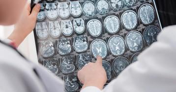 Некоторые функции мозга можно восстановить после смерти