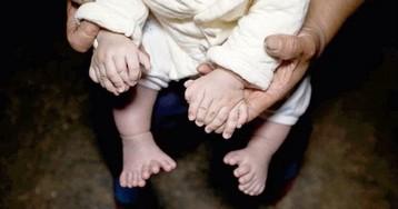 31 палец. В Китае родился ребенок с лишними пальцами на руках и ногах