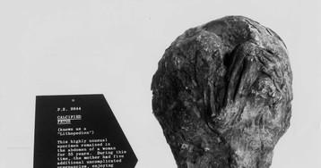 Что такое «литопедион» («каменный ребёнок»)?