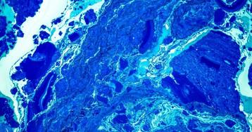 От зубного геля кровь женщины стала синей