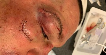 Грандиозные швы и шрамы на лице Диаса после избиения от Масвидаля