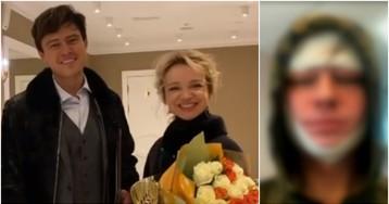 Прохор Шаляпин показал свое лицо после пластики