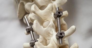 Альтернативный метод транспедикулярной фиксации или как штангенциркуль может заменить целый рентгеноаппарат