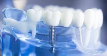 Импланты или имплантаты? Что нового и интересного есть в имплантологии