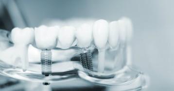 Одномоментная имплантация: почему не нужно бояться удалять зубы