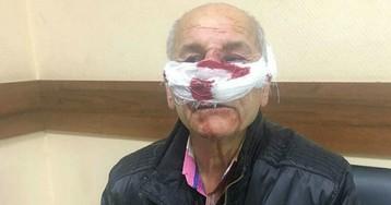 Врач скорой и 76-летний пенсионер выяснили отношения по дороге в больницу