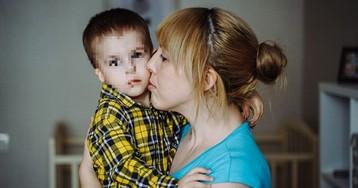 Отец ушел из семьи после рождения сына без уха в Самаре