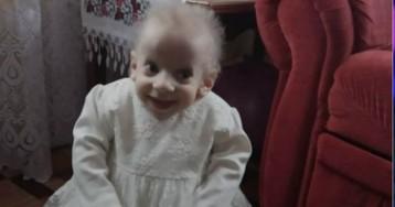 8-летняя Анна Сакидон ушла из жизни от преждевременного старения в Волыни