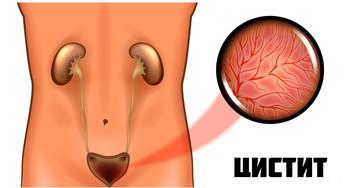 Цистит - это… Симптомы и лечение. Цистит у женщин