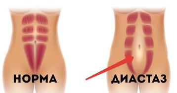 Диастаз: белая линия живота и диастаз прямых мышц после родов