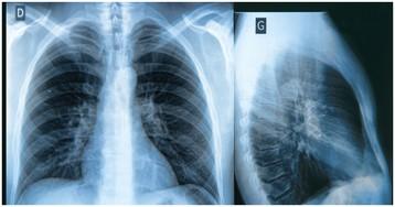 Отек легких: почему легкие отекают, симптомы и лечение отека легких