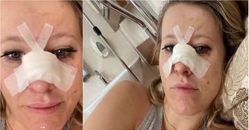 Собчак госпитализирована с переломом носа
