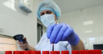 Коронавирус в Украине: более 3500 случаев заражения за сутки