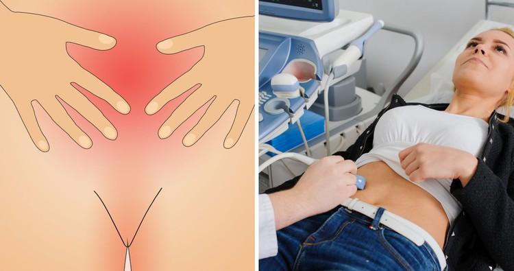 Эхопризнаки полипа эндометрия