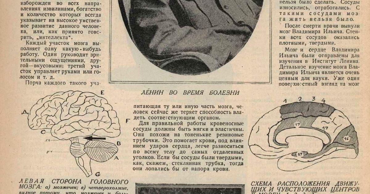 Фото Журнал «Смена» за 1925 год, рассказывает о «лучшем образце мозга человека с крупнейшим интеллектом».  Кликабельно