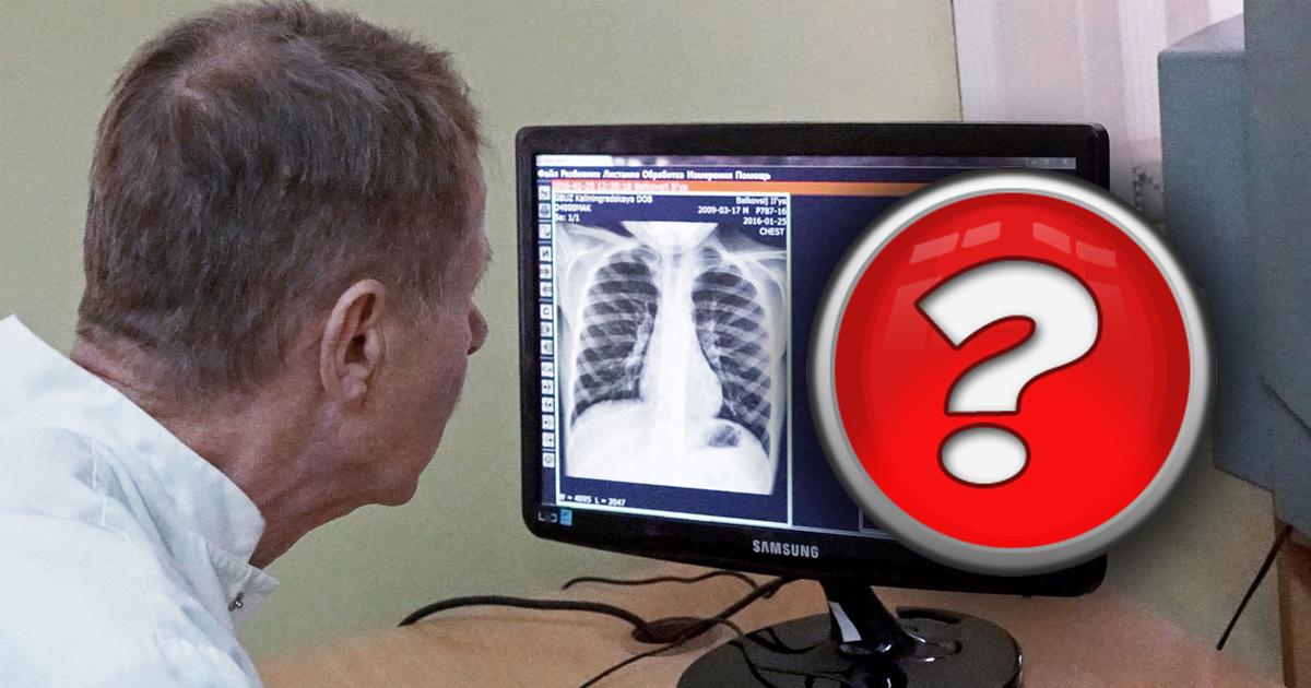Фото Можно ли заболеть раком, если часто делать рентген?