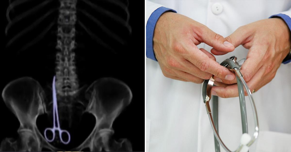 Фото Не могла шелохнуться: пациентка полгода жила с зажимом, забытым в кишечнике врачами