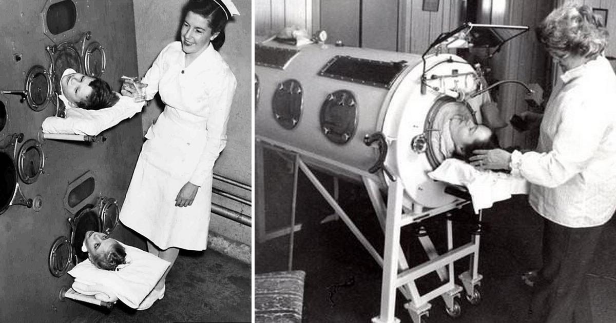 """Фото В железной клетке: история Дианы Оделл, 60 лет прожившей в """"танке"""" для вентиляции легких"""