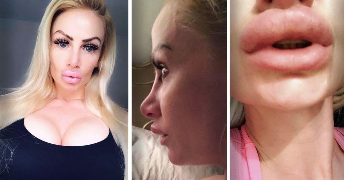 Фото Стать Барби: англичанке в губы ввели детское масло вместо филлеров