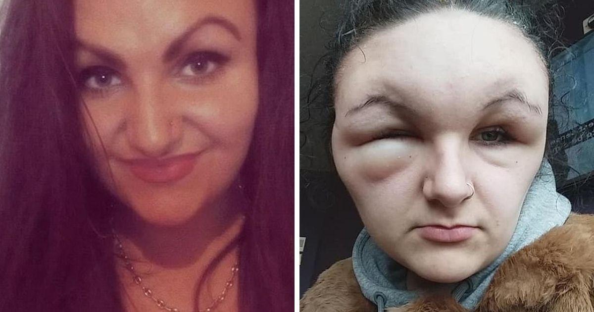 """Фото """"Похожа на монстра"""": британка попала в больницу из-за аллергии на краску"""